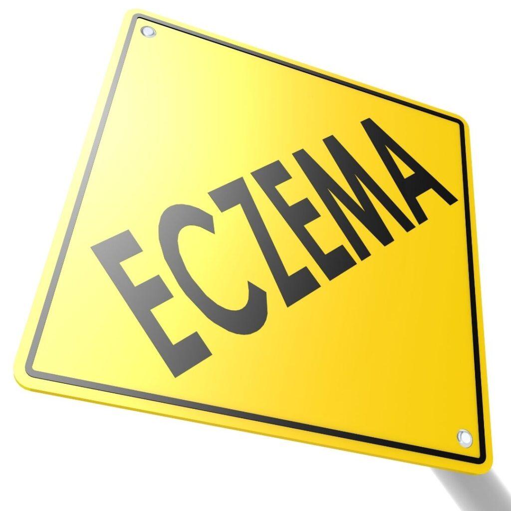 Eczema Sign